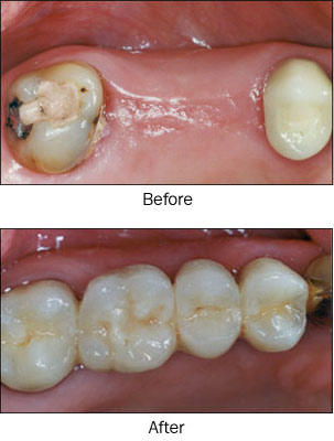how to make temp bridge with missing tooth