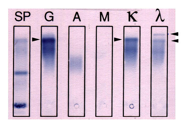 What is an immunofixation electrophoresis?