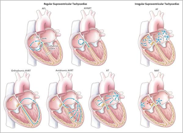 How is supraventricular tachycardia treated?