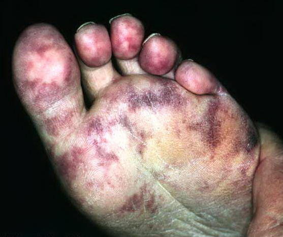 What does arterial occlusion look like on your toe?