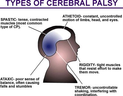 What kind of complications could arise during pregnancy if you have cerebral palsy?