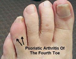 What do doctors generally presribe for psoriatic arthritis?