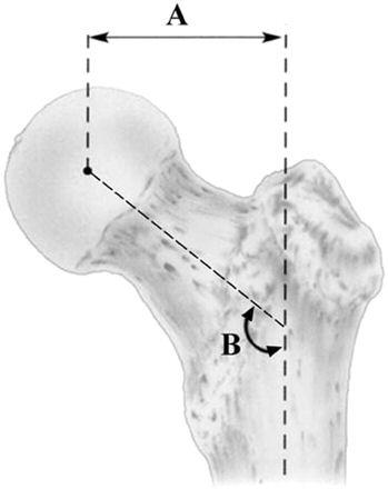 What is femoral offset ? And how does it cause hip pain ?