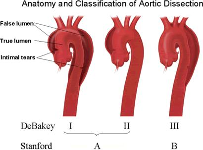 How can I be sure if my daughter has an aortic dissection or not?