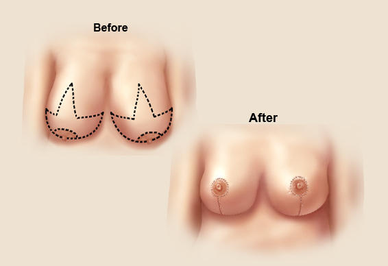 What will i go through if i decide to get a breast reduction?