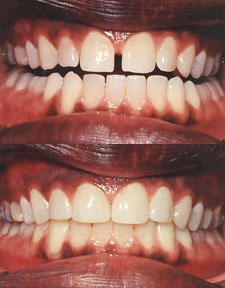 Is dental bonding the only way to fix small gaps between teeth? I have a gap between two teeth that i would like to fix, and have read a lot about dental bonding. I'll probably go with that, but would just like to know if there are others methods that wou