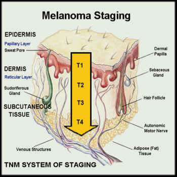 What are the different stages of skin cancer?