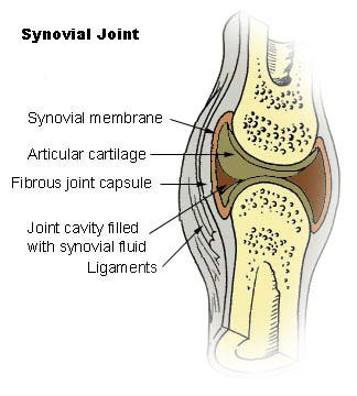 What is a good treatment for calcium buildup in knee joints?