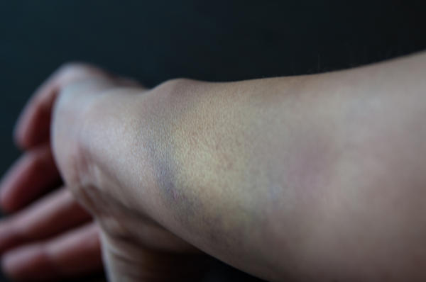 Bruise that does not heal.
