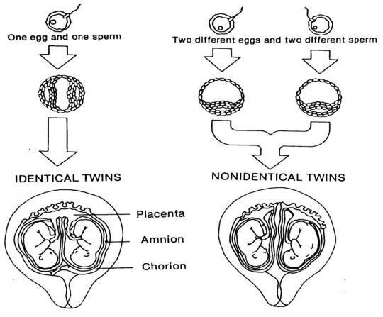 Are twins hereditary?