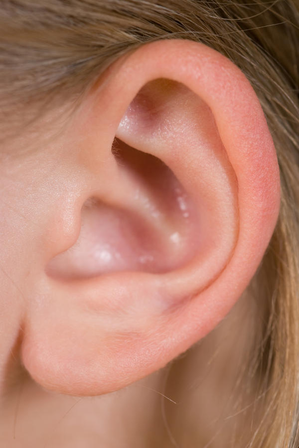 I have a hole in my upper ear, just wondering what  it is. I was born with it?