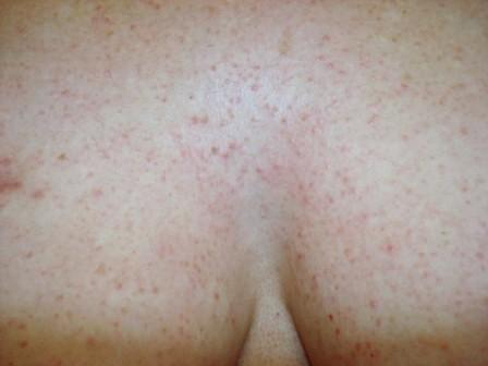 Adult rash on chest photo 610