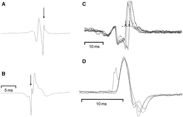 When an emg shows slight fasciculation is it comsidered clear or dirty?
