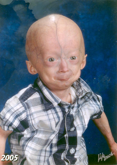 What are treatments for  progeria?