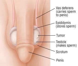 Image result for testicular atrophy