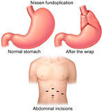 What is the definition or description of: acid reflux surgery?