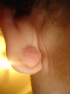 Is an epidermoid cyst dangerous?