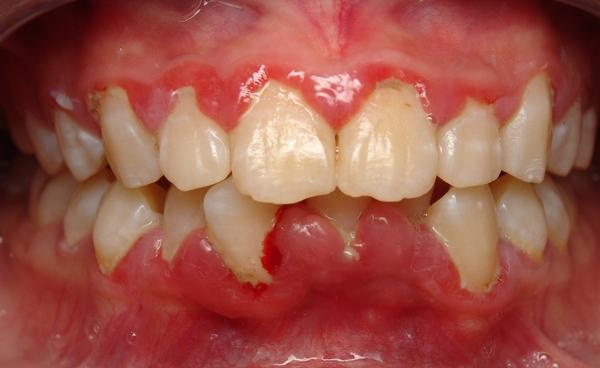 My gums are swollen and now it's going higher. Help?