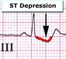 Is st.Depression of the heart the same thing as myocardial ischemia?