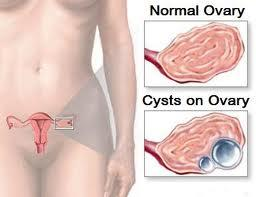 What is the best treatment for an ovarian simple cyst?