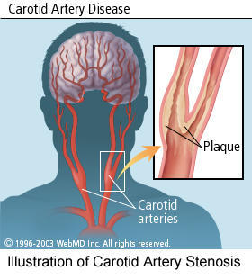 What is the treatment and prognosis for someone with a combination of carotid occlusion/stenosis and occlusion/stenosis of the basilar artery?