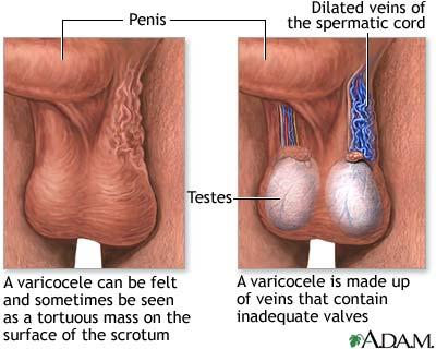 Good day to all doctors in the house please i just want to know the sign of vericocele in the body, thanks?