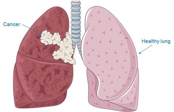 What is CT scan usual result for lung cancer?