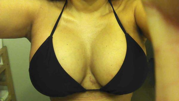 I had a breast lift with silicone implants 9 days post op... I am having a lot of pain in between my breast..Is this normal?