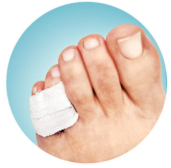 I fractured my little toe. Is there anything I can do to help. It has beenabout ten days.