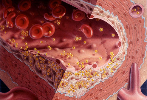 What causes atherosclerosis? My diet consists of lost of fast food, however I do not have high cholesterol, what are the chances that i will develop atherosclerosis?