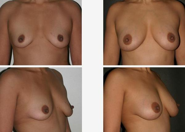 Is there an all natural way to enhance breasts other than excercise and gat?