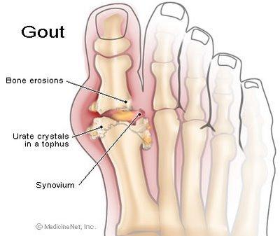 Best way to deal with gout and arthritis?