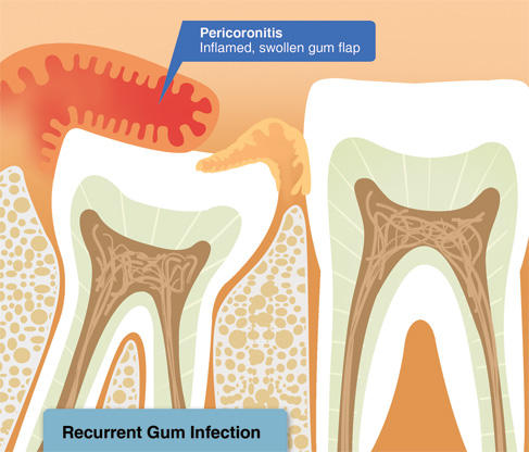 Что делать когда десна наросла на зуб