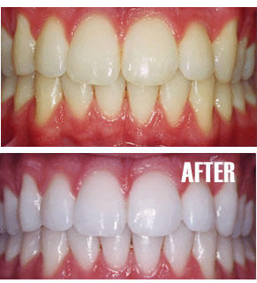 Are there any alternatives to laser teeth whitening?