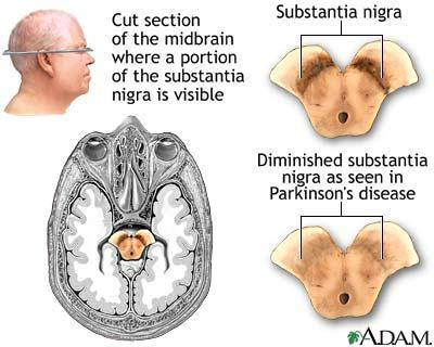 What part of the brain or nervous system does Parkinson's disease impact?