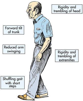 Do symptoms of Parkinson's include arm stiffness?