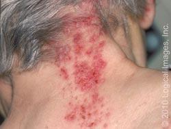 Is it possible to have shingles for over a year?
