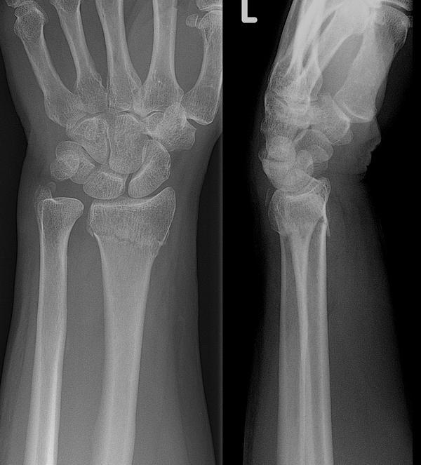 Pain in hand after wrist was squeezed?