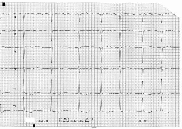 Is a weak/faint heart beat a possible sign of any heart problems?