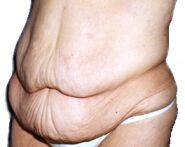When super fat people lose weight they have all that loose skin. Is the only way to get rid of that through surgery?