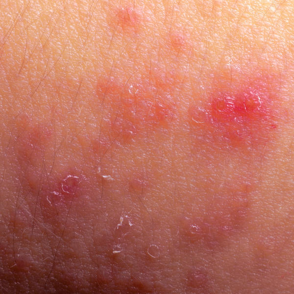 My eczema is really bad. What can help?