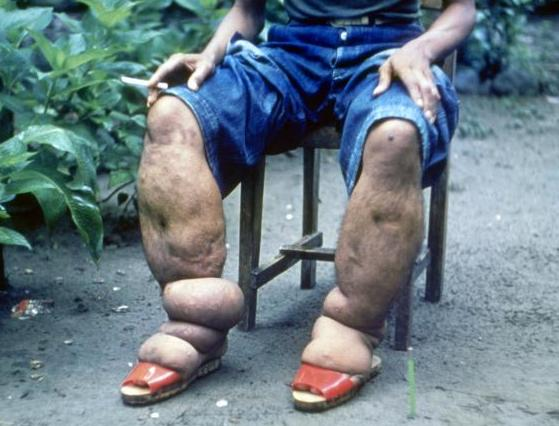 Elephantiasis: if the worm can live inside your body for up to 6 years then does the disease go away when the worm dies?