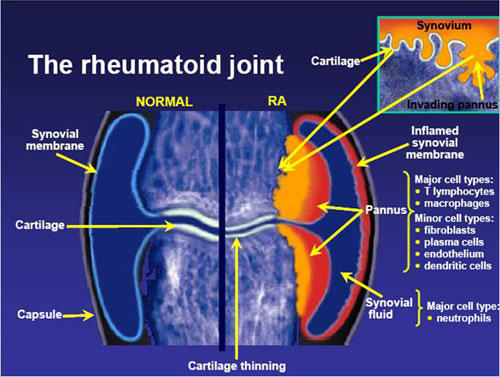 What is the cause of rheumatoid arthritis?