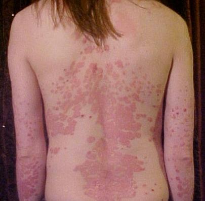 Does guttate psoriasis get worse before it gets better?