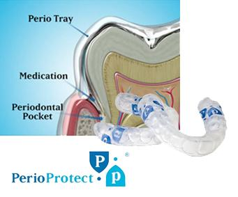 How long would it take to cure periodontal disease?