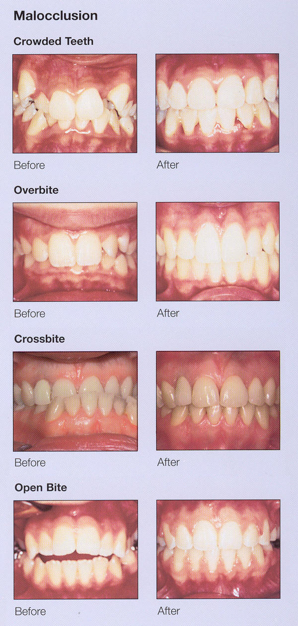 Are there any good alternatives to braces that costs less?