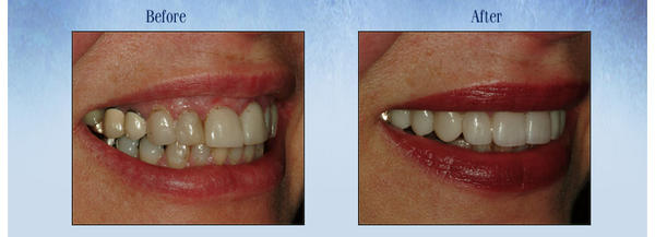 Are periodontists supposed to do the crown lengthening and a general the restorative?