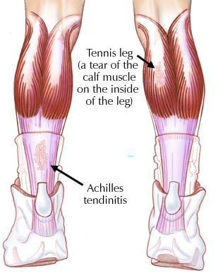 Severe left calf pain. How to alleviate?