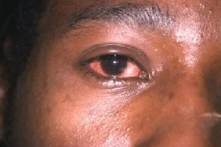 Do pinkeye symptoms come and go. I have been having white discharge in the morning, just sticky. Eyes feel dry but improve with water.?