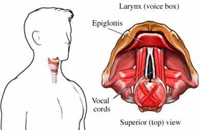 What is it called when someone loses their voice but there is no structural damage to the larynx or neuro basis?